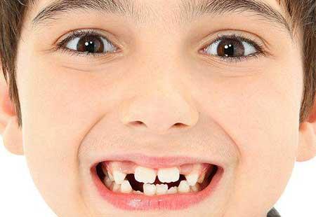 Cara Perawatan gigi anak bayi